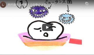 虫歯のメカニズム編